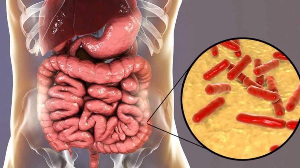 probiyotik ne işe yarar