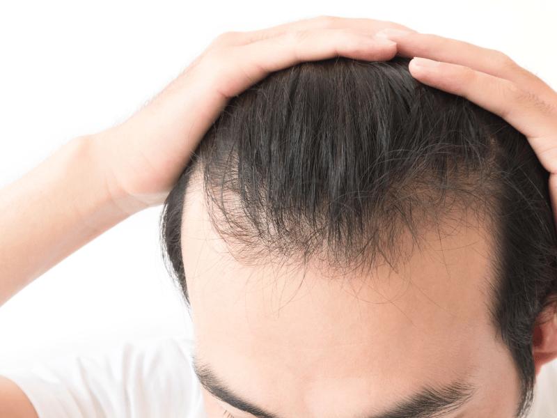 kreatin saç dökülmesi